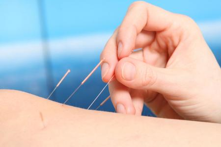 Acupuncture for Chronic Pain Springfield, NJ